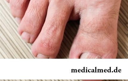 Вросший ноготь: 10 народных средств избавления от проблемы